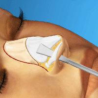 Virtual Nose Job Surgery